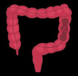 Pólipos en el intestino grueso