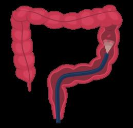 Pólipos removidos con endoscopia